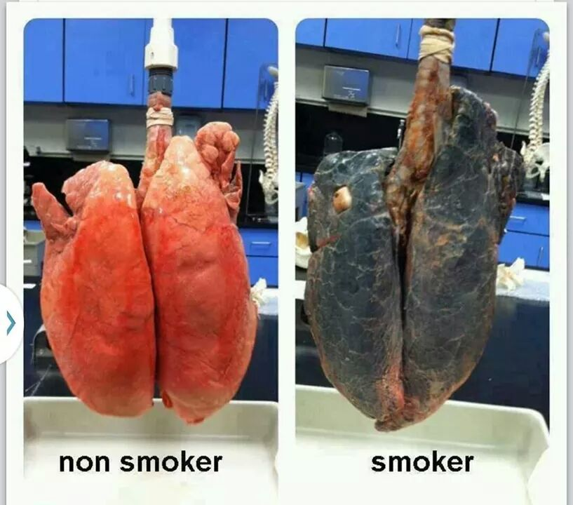 Stop Smoking Before It's Too Late